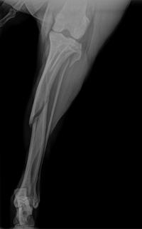 Fracture Pre-op 1