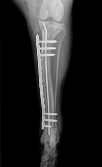 Fracture Post-Op 1